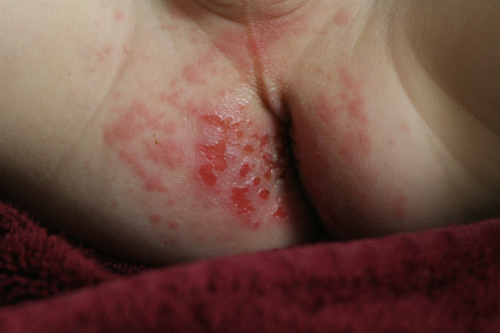 Anus rash burns