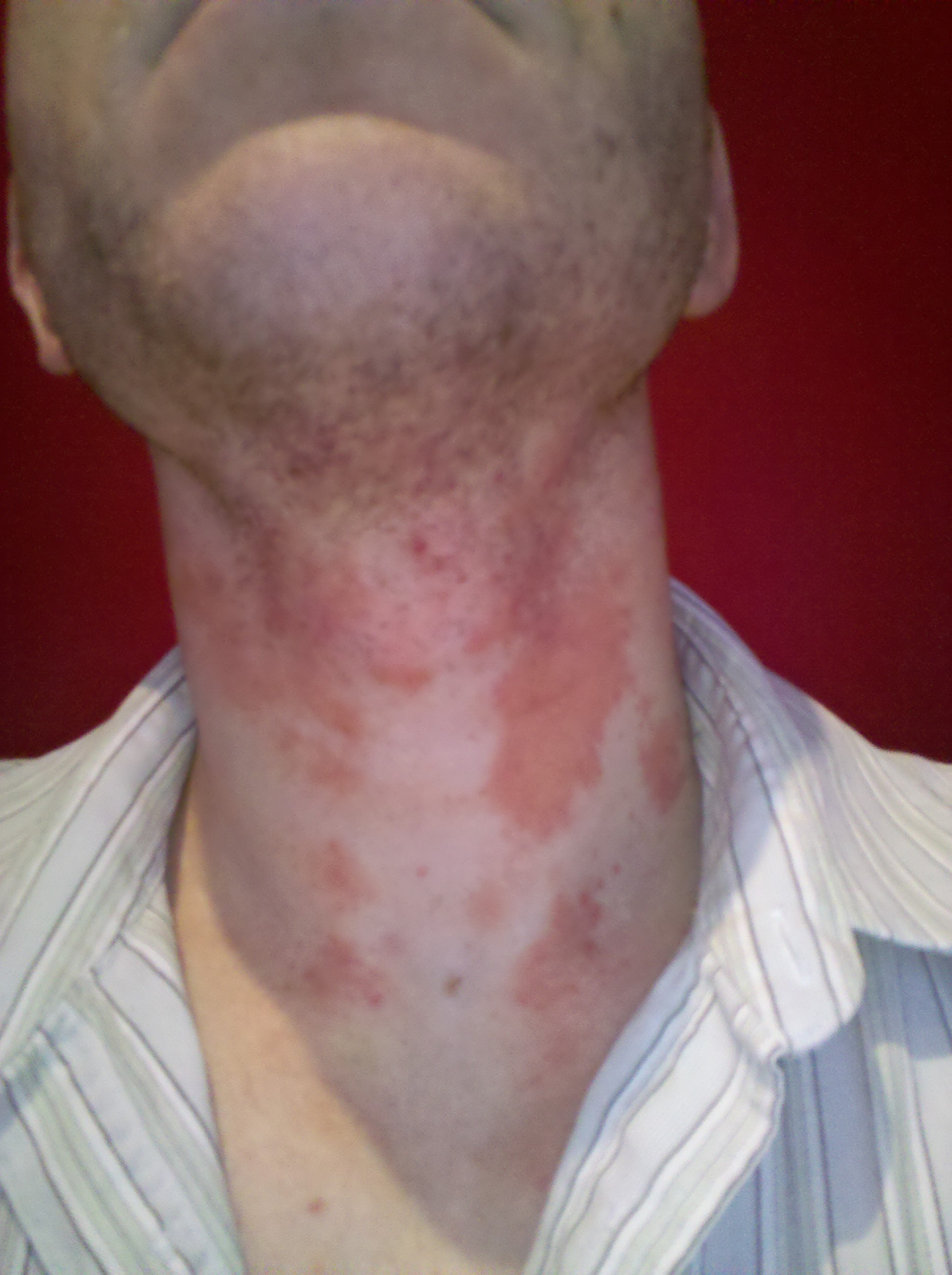 And on back of neck hairline rash pictures to pin on for Fish oil rash