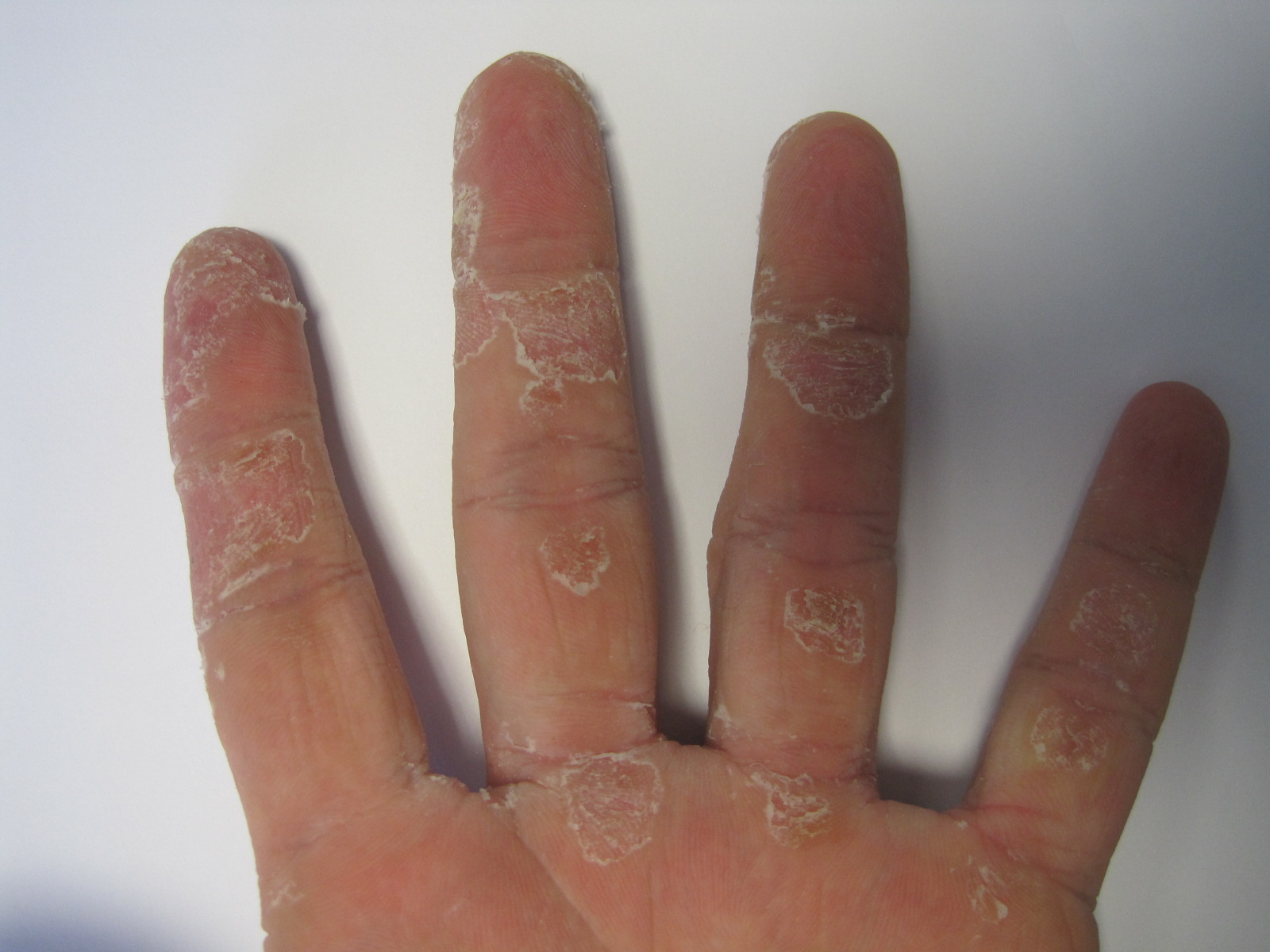 I have really dry skin on my hands - 336.5KB