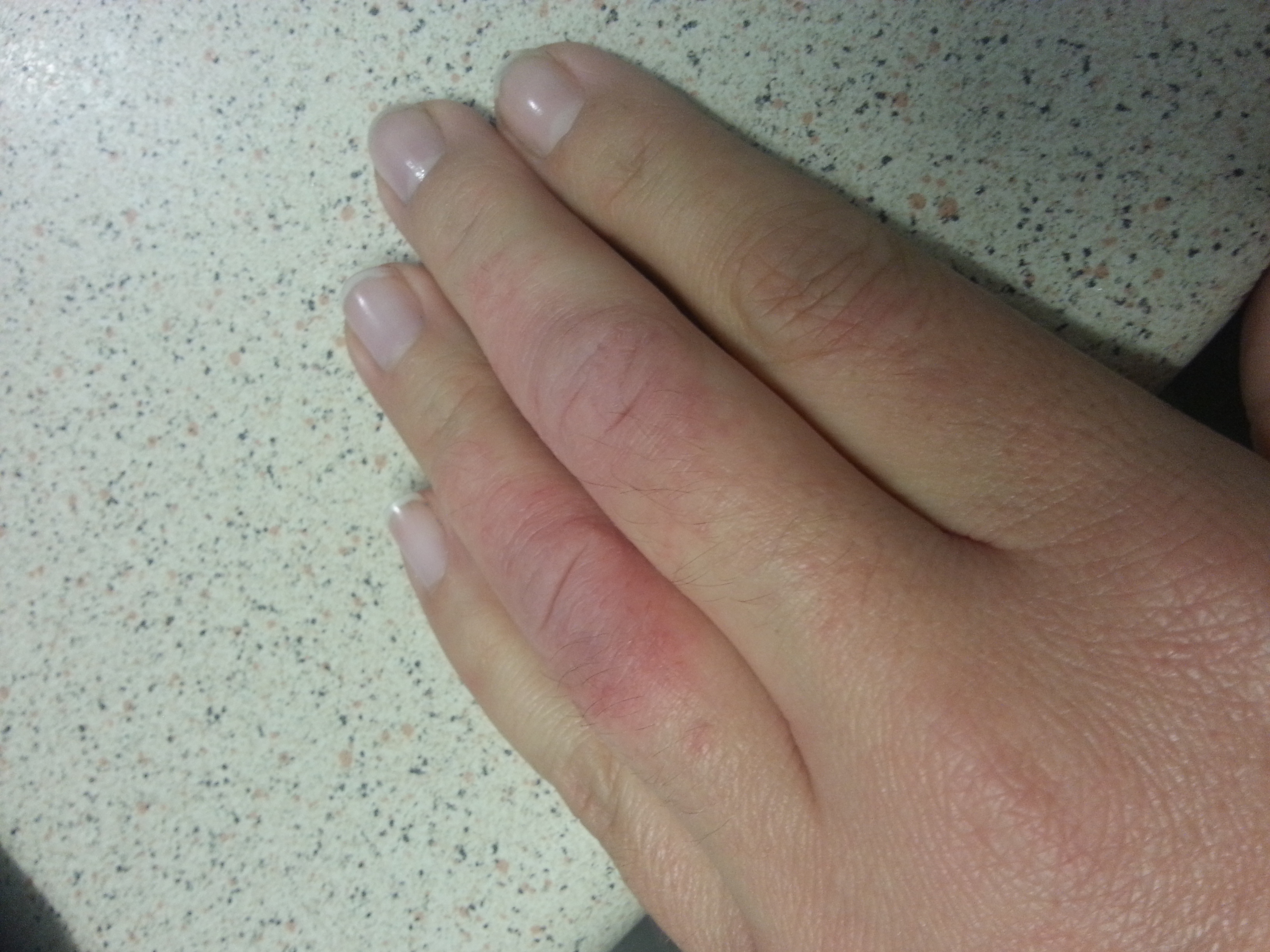 I Have A Red Dry Irratable Rash On Two Fingers On My Left Hand