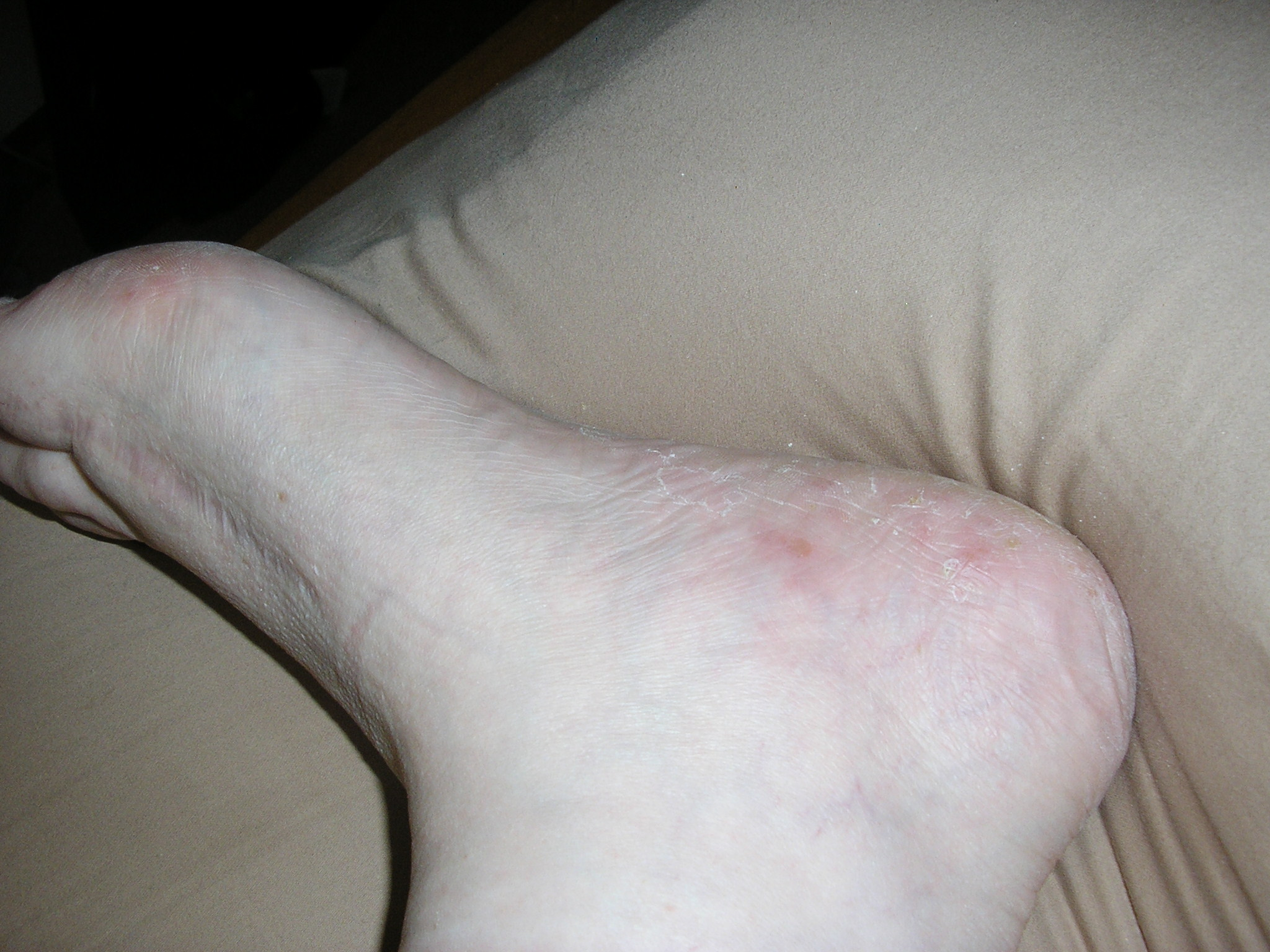 Red Itchy Bumps On Bottom of Foot