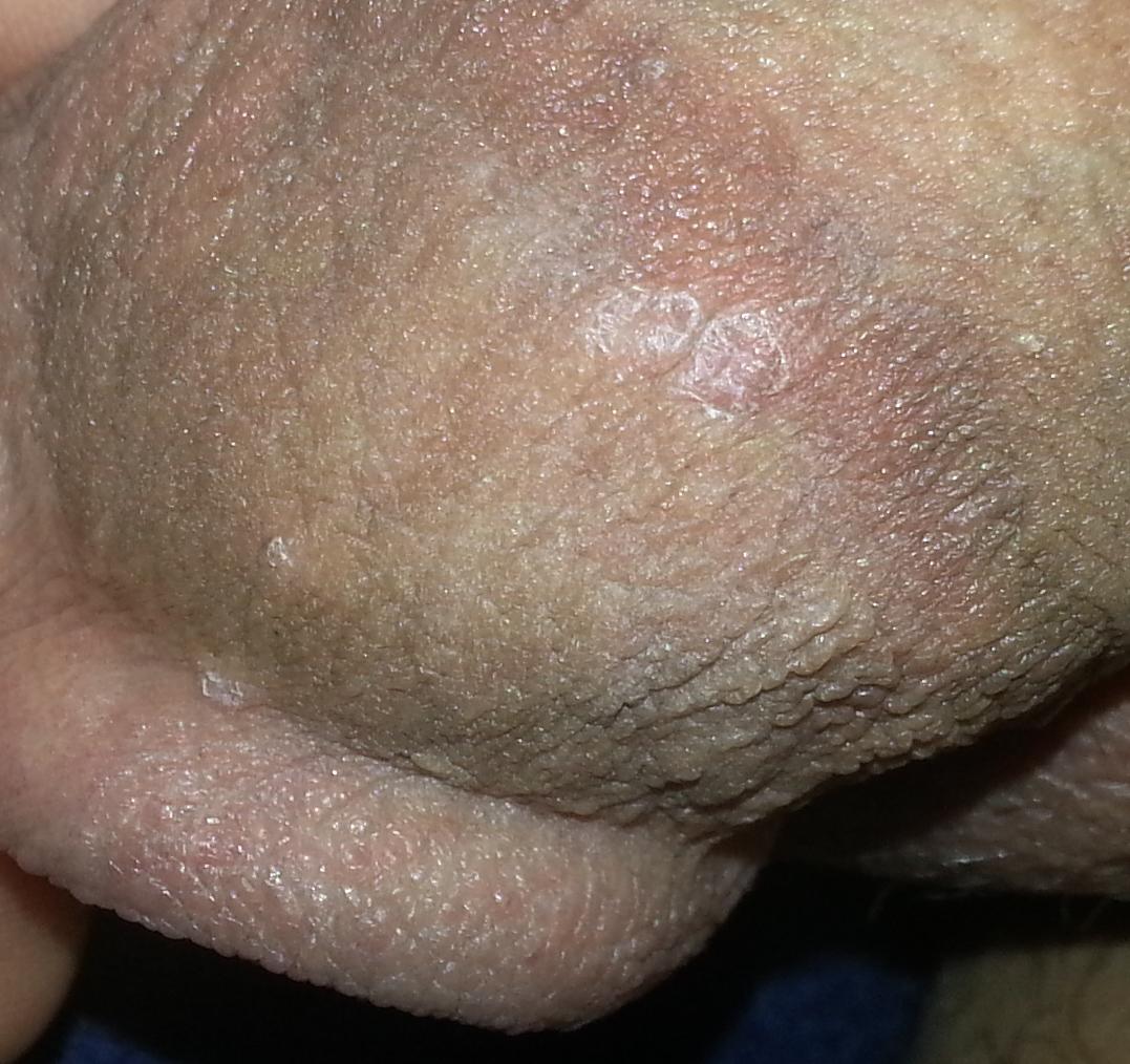 scabs on penis head