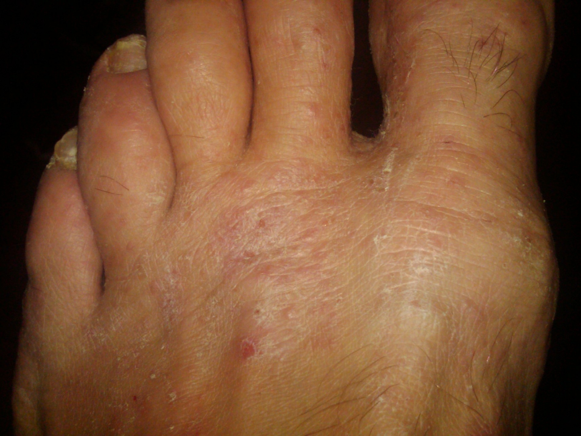 how to cure open blisters on feet fast