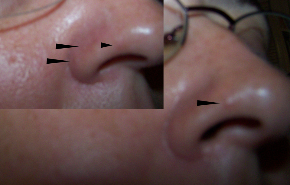 fibrous papule removal - Top Doctor Insights on HealthTap