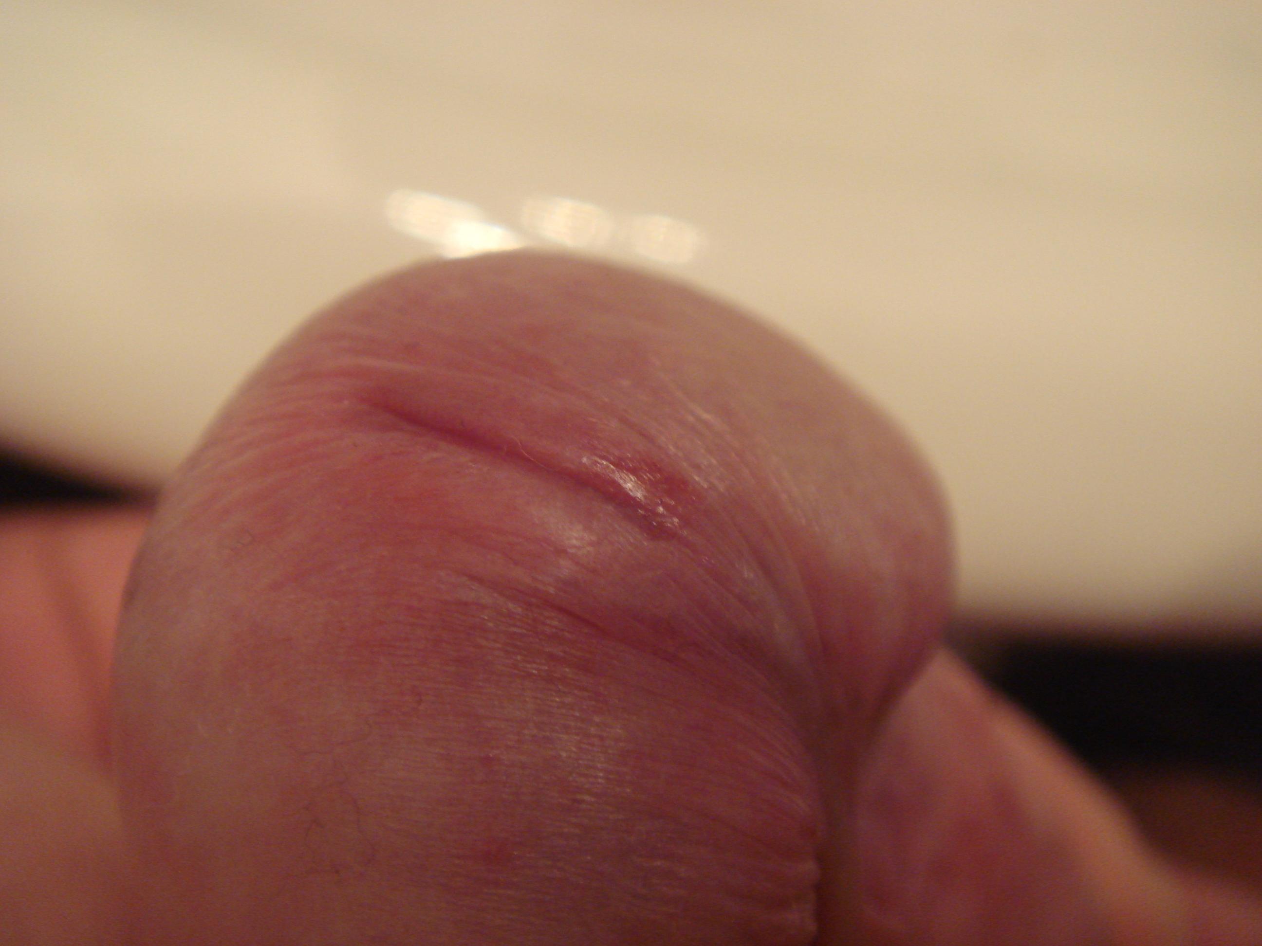 Reddish rash on penis