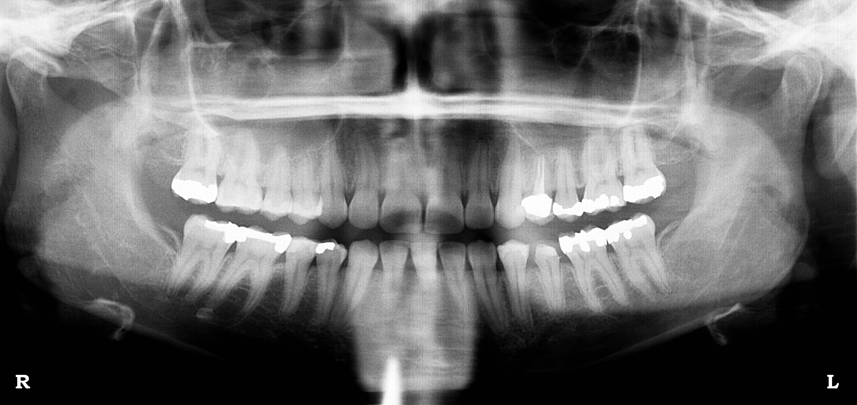 White Spot On Jaw Bone in Dental X-ray