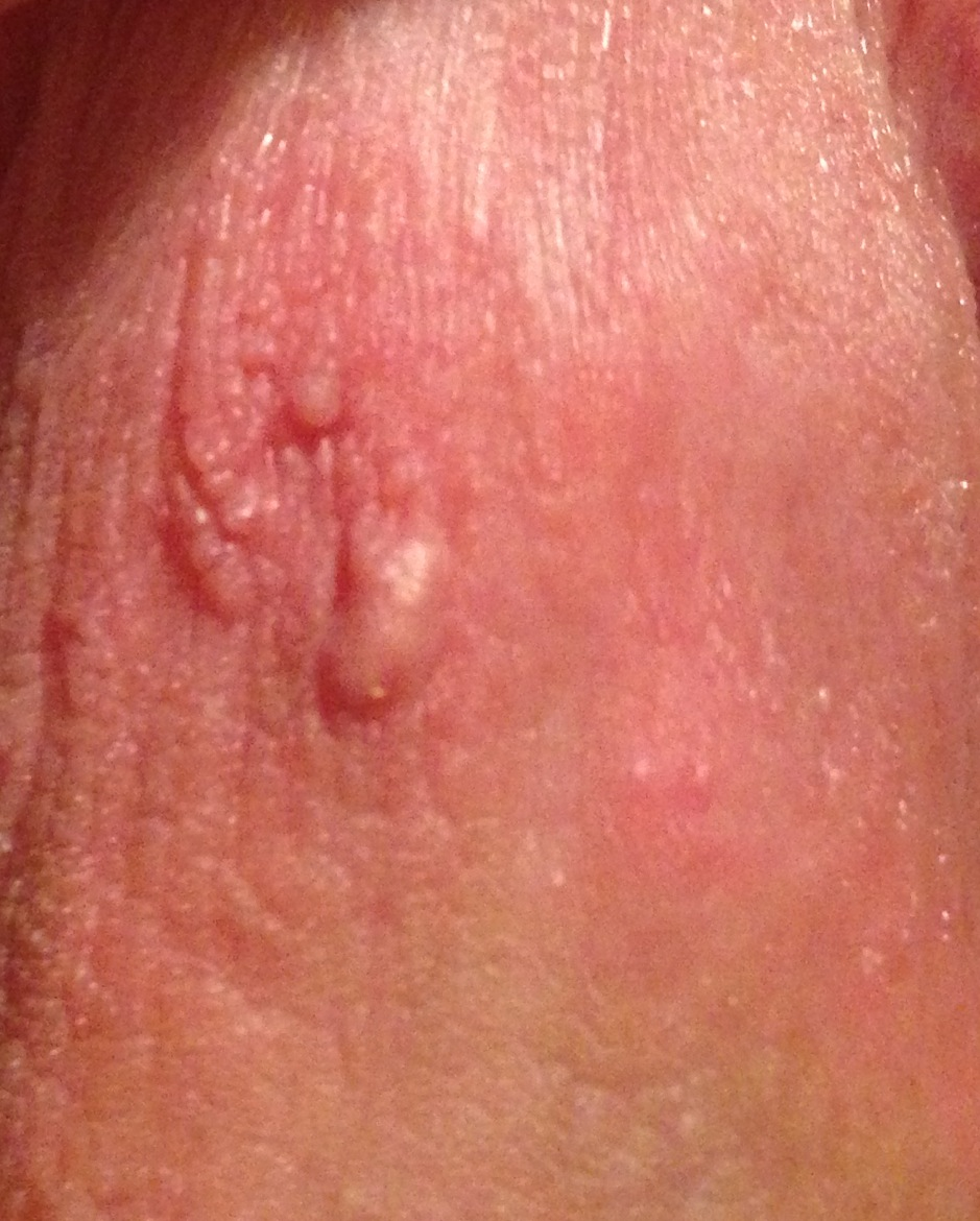 Tiny bumps penis head