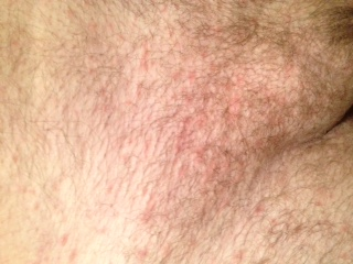 Pubic Rash | search hiv symptoms in women pictures ...