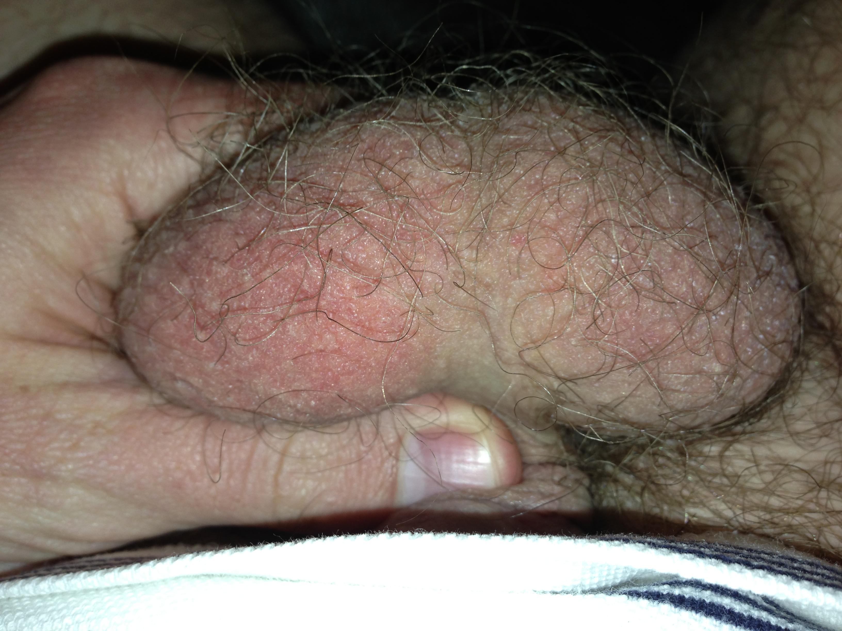 Herpes Symptoms in Men - Male Herpes Signs - STD Test Express