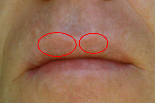 sores on face itchy
