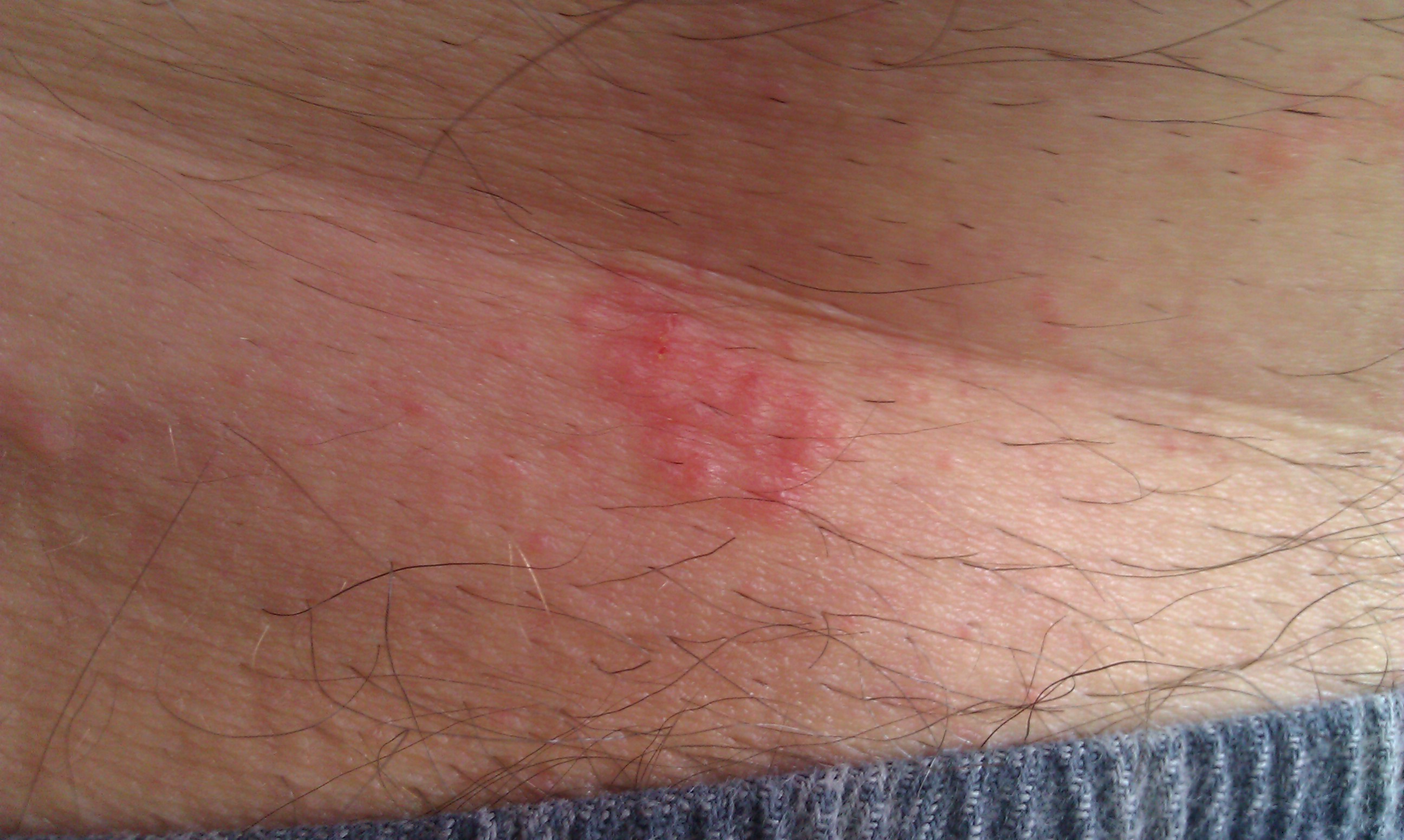 Sudden bright, red, and itchy rash on torso - Skin Forum ...