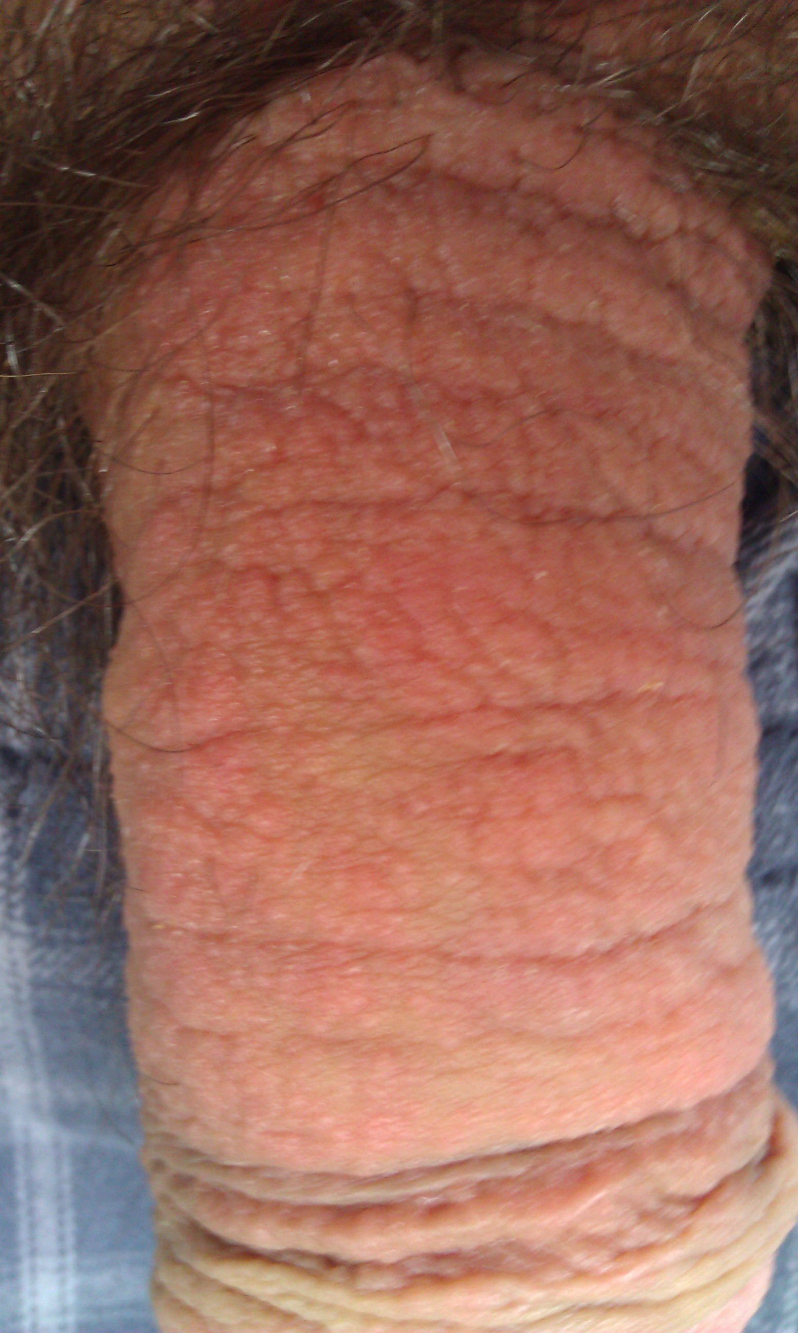 bumpy itchy penis after sex