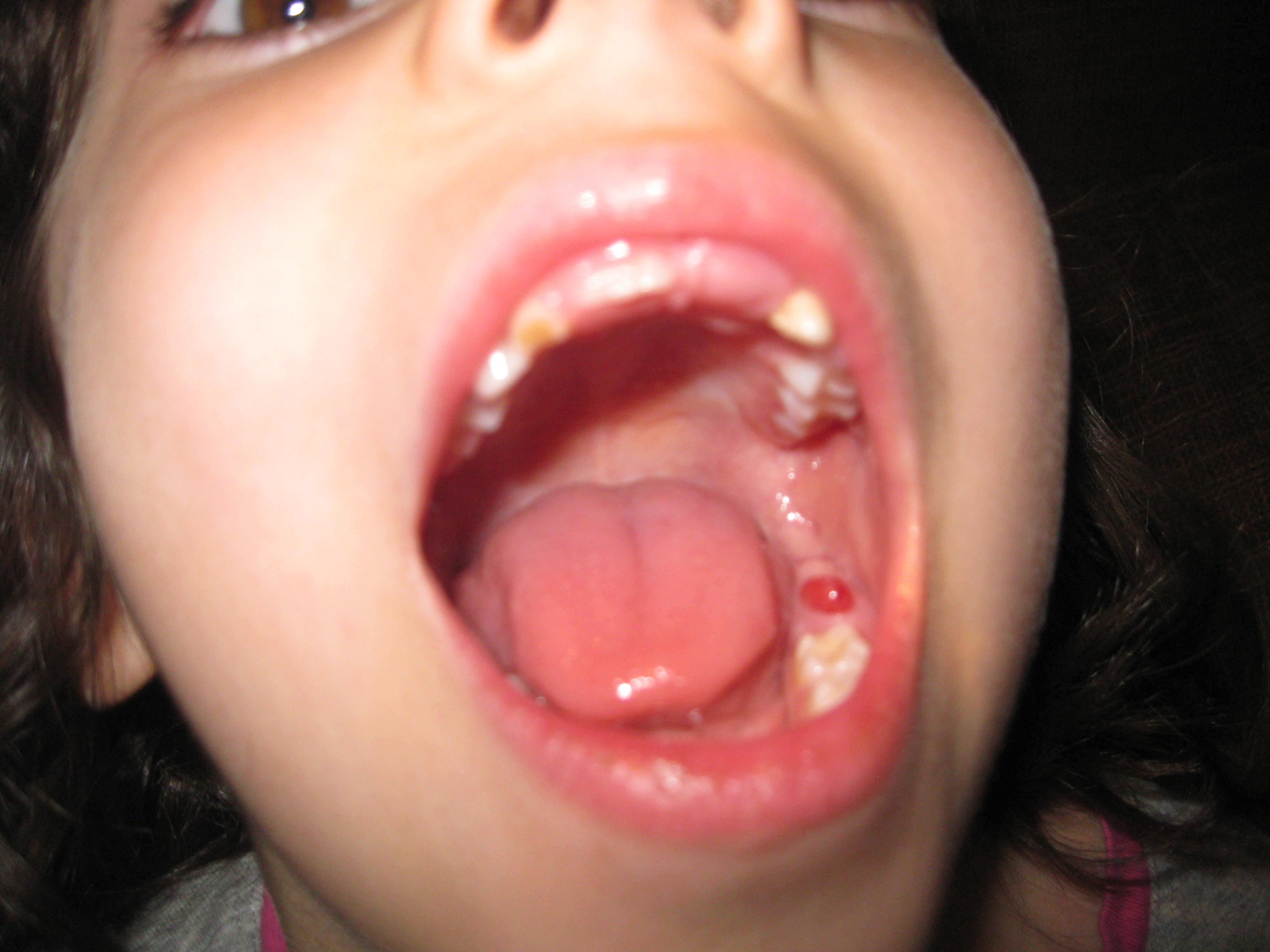 Blood Blister On Gums