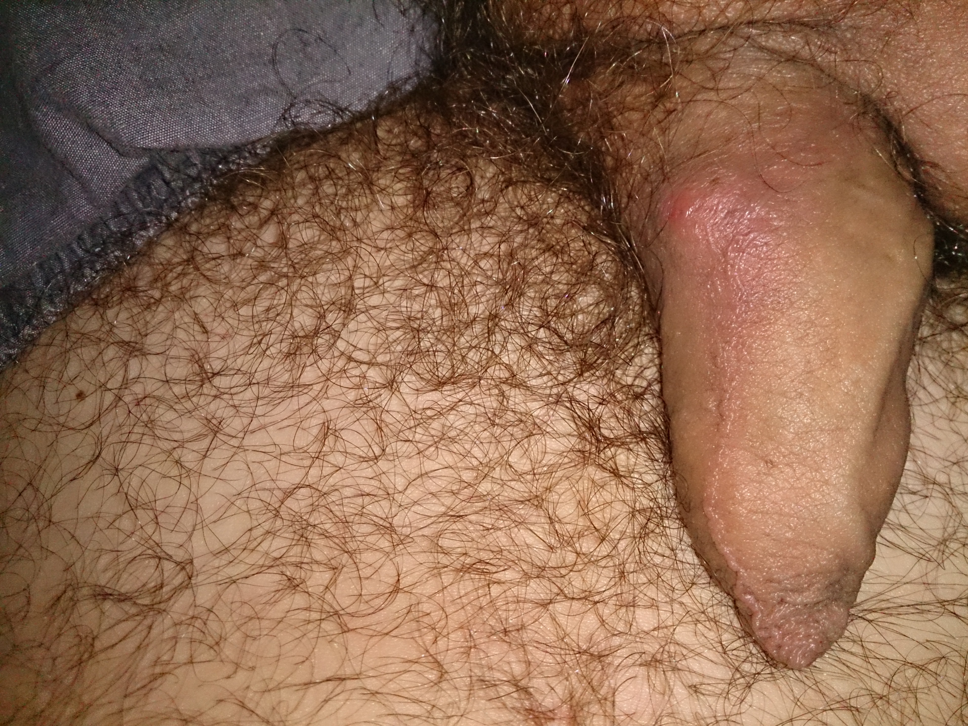 A cyst on the penis