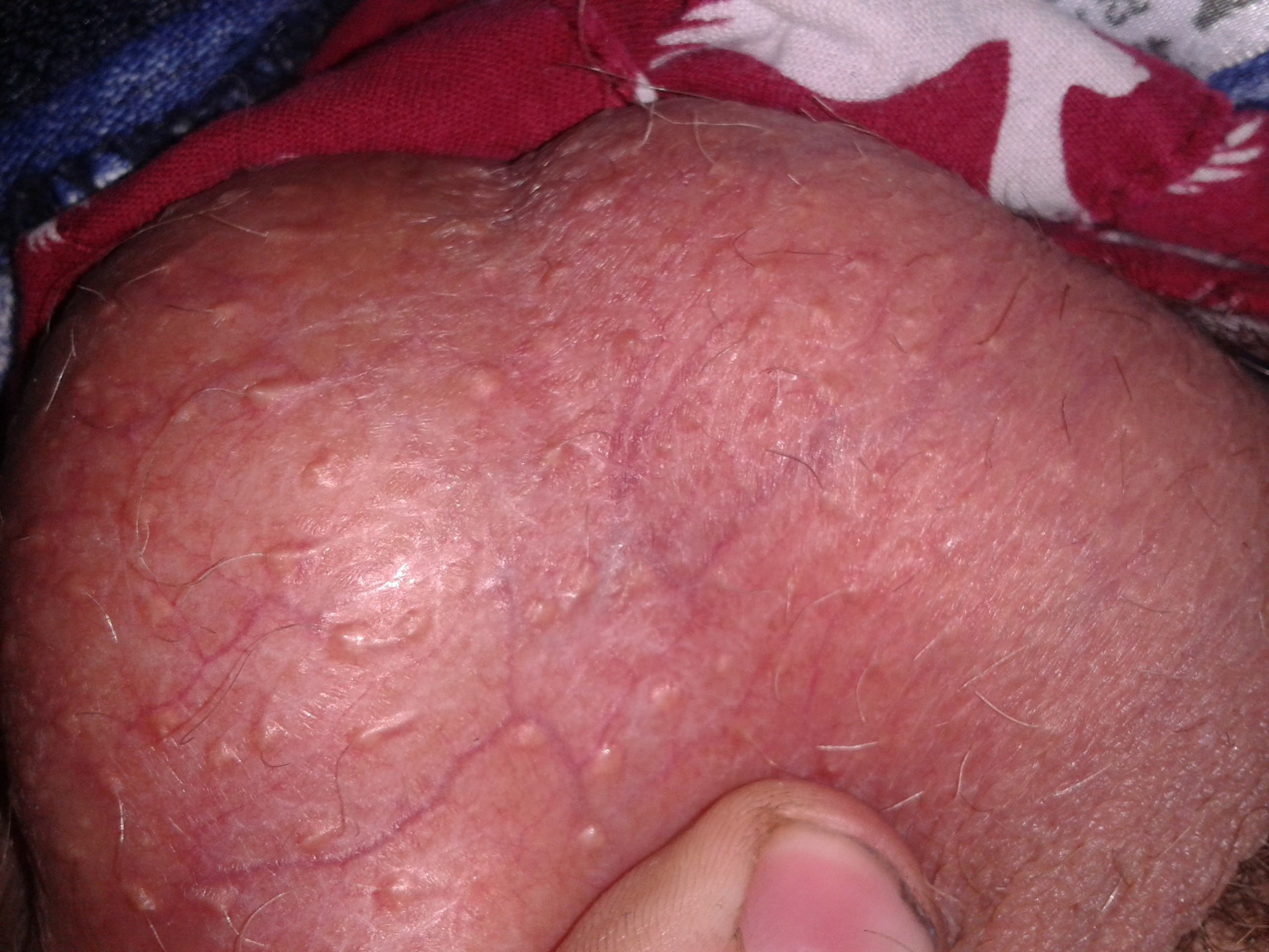 Bump on my penis