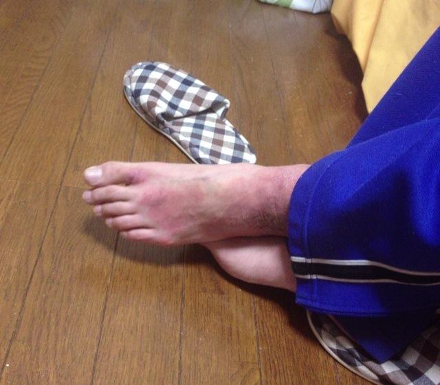 足首の写真