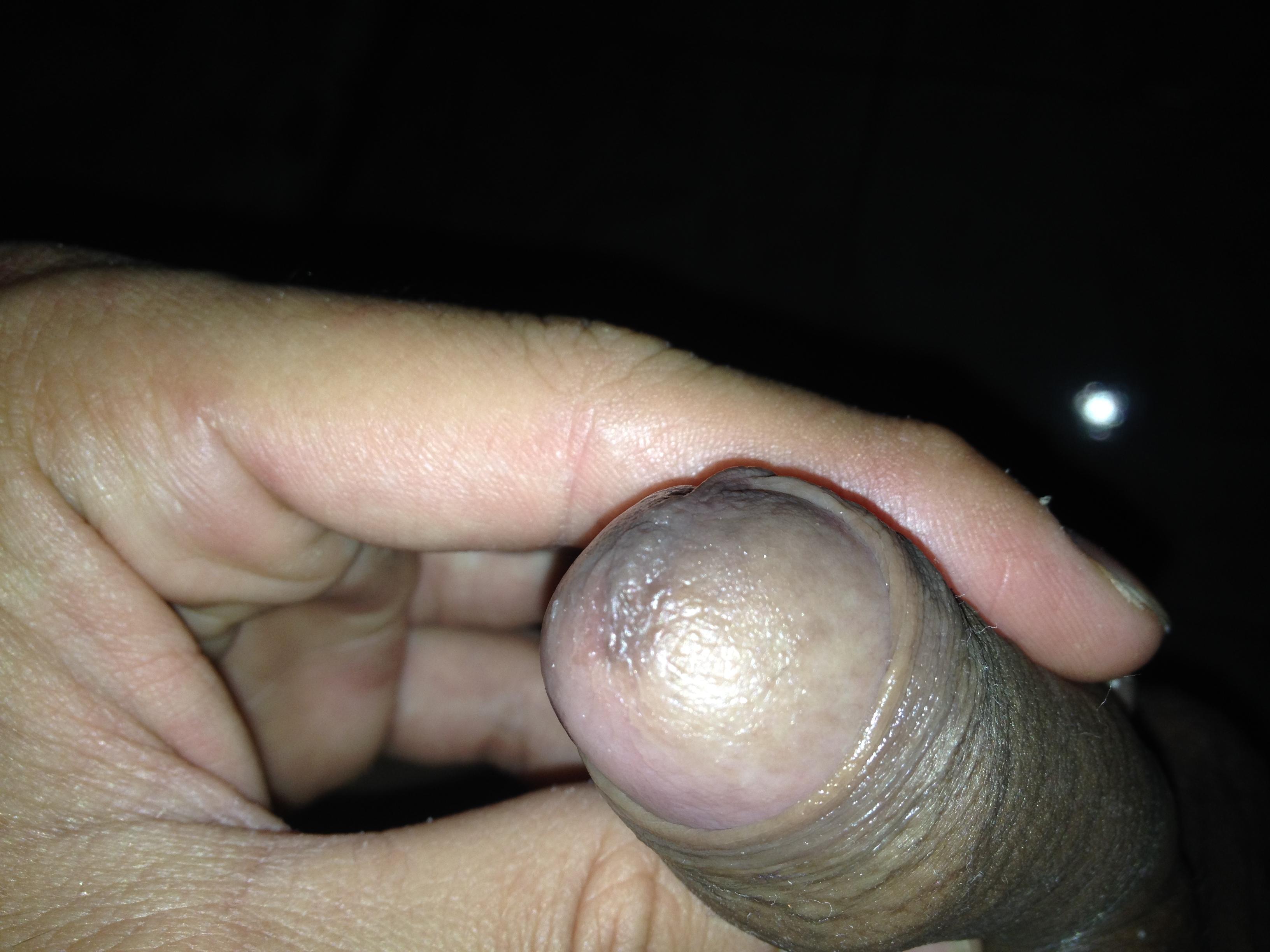 La operación al miembro viril antes y después