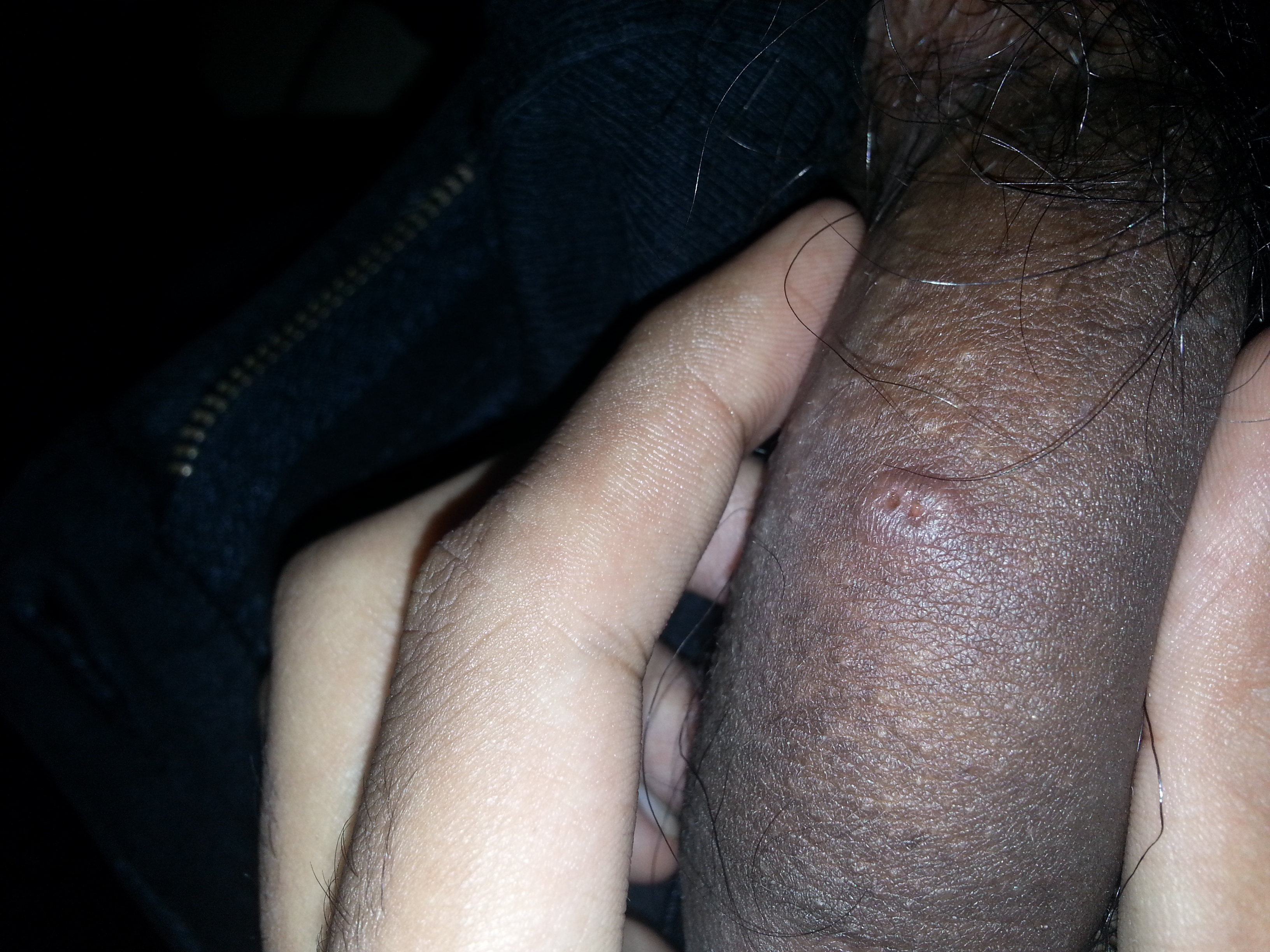 Small Lump On Penis 13