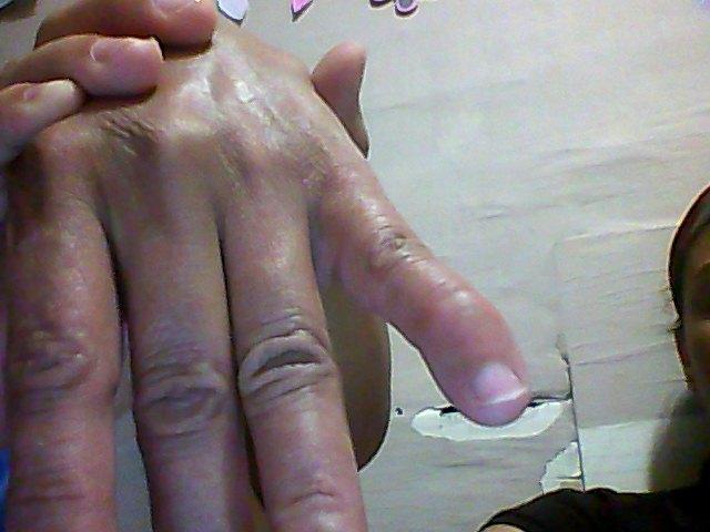 dedos de  las manos
