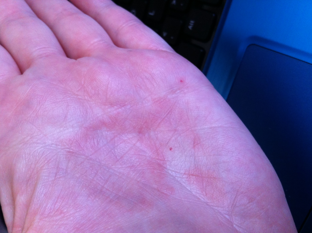 Red itchy palms, is this caused by hormones? - HealthTap
