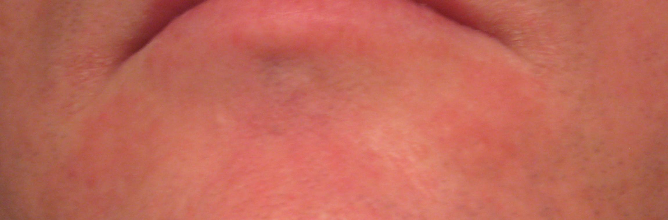 Vaginal Rash From Cipro