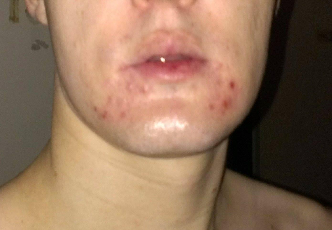Red under bottom lip