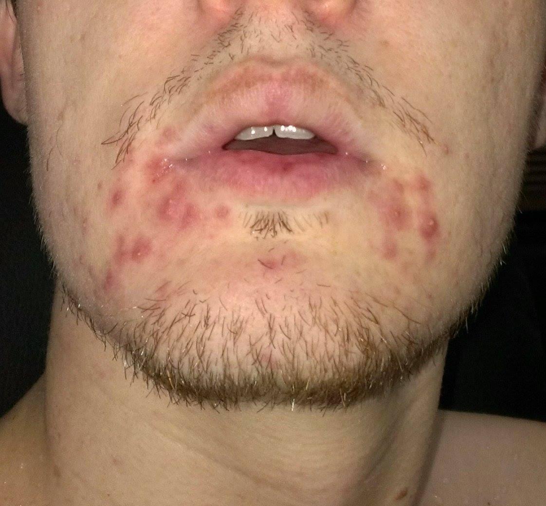 Rash Under Lower Lip - Mamapedia