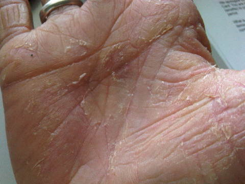 dry itchy peeling skin on hands
