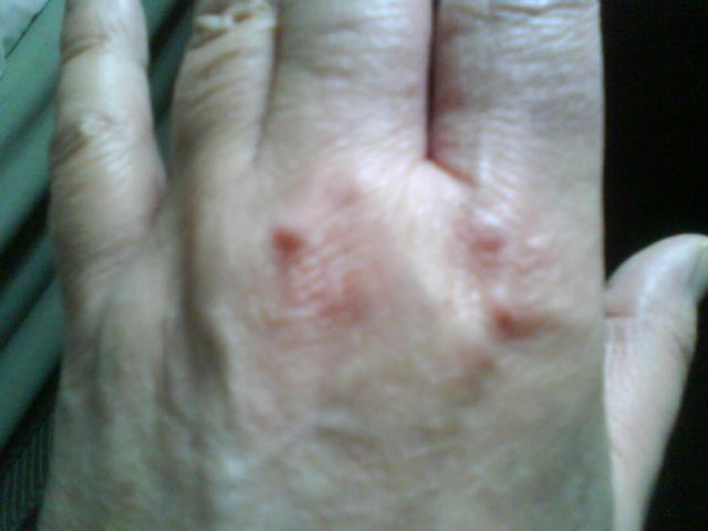 Slideshow: Lumps and Bumps: What's on My Skin? - WebMD