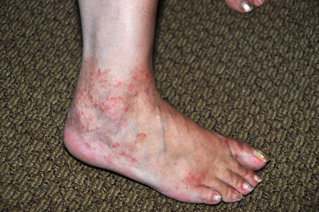 red rashes on ankles