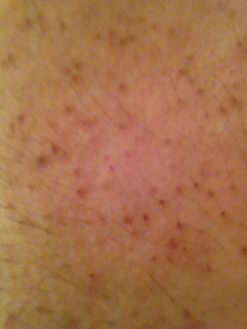bumps on chest - MedHelp