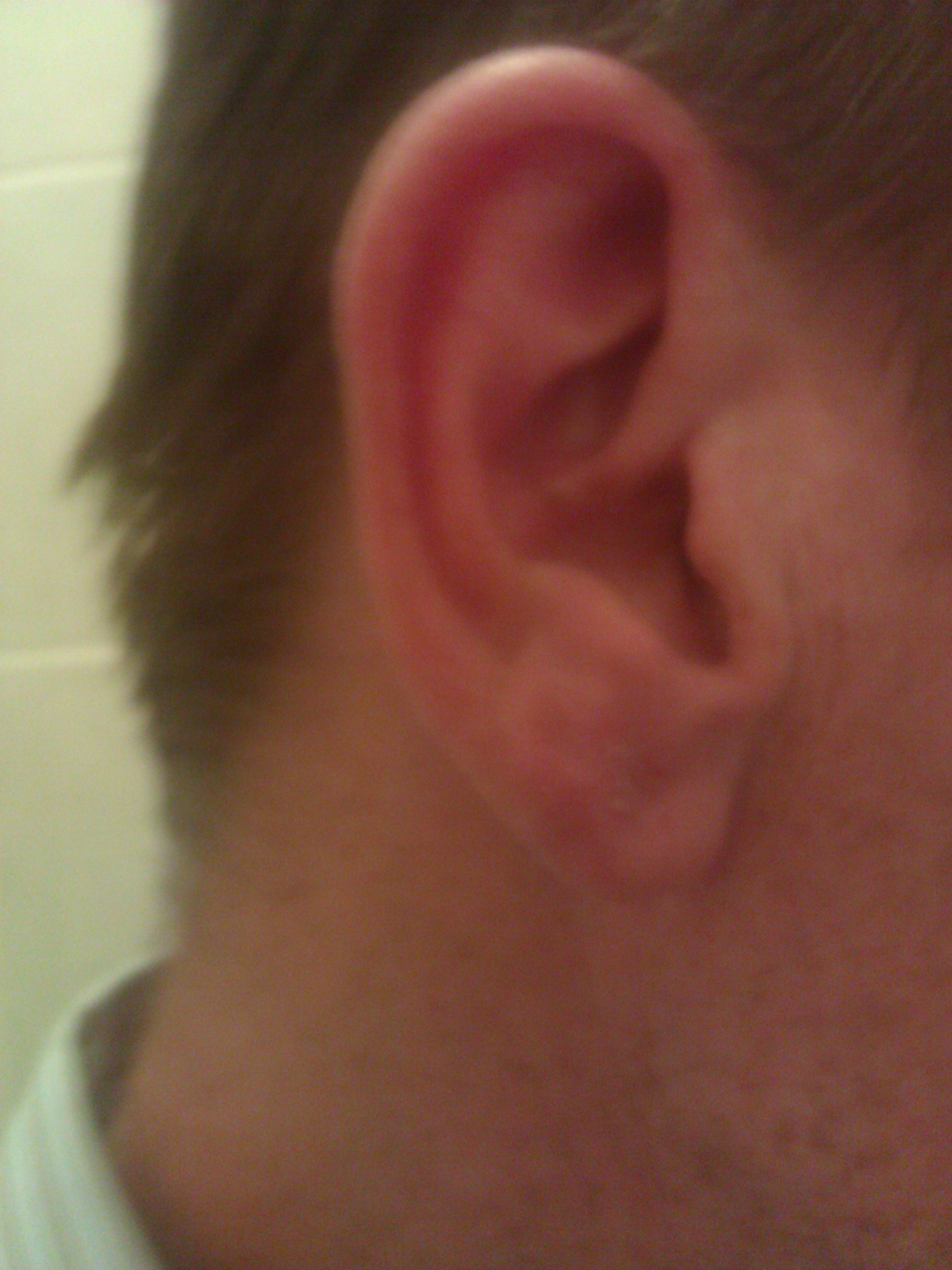 how to fix a infected ear lobe