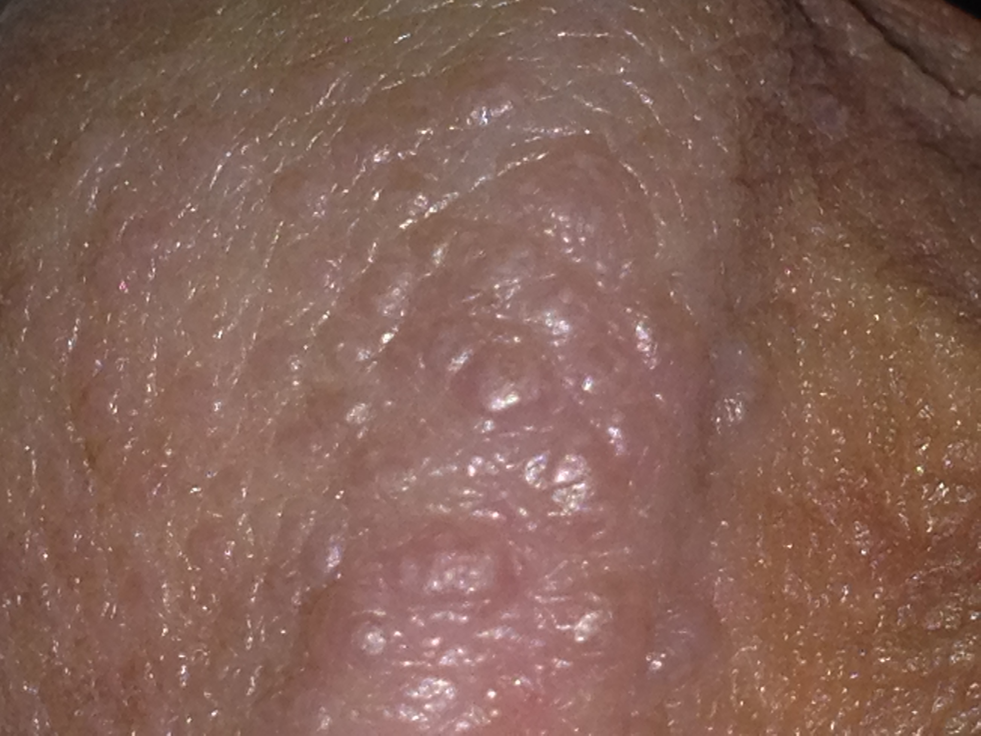 Bump penis picture white
