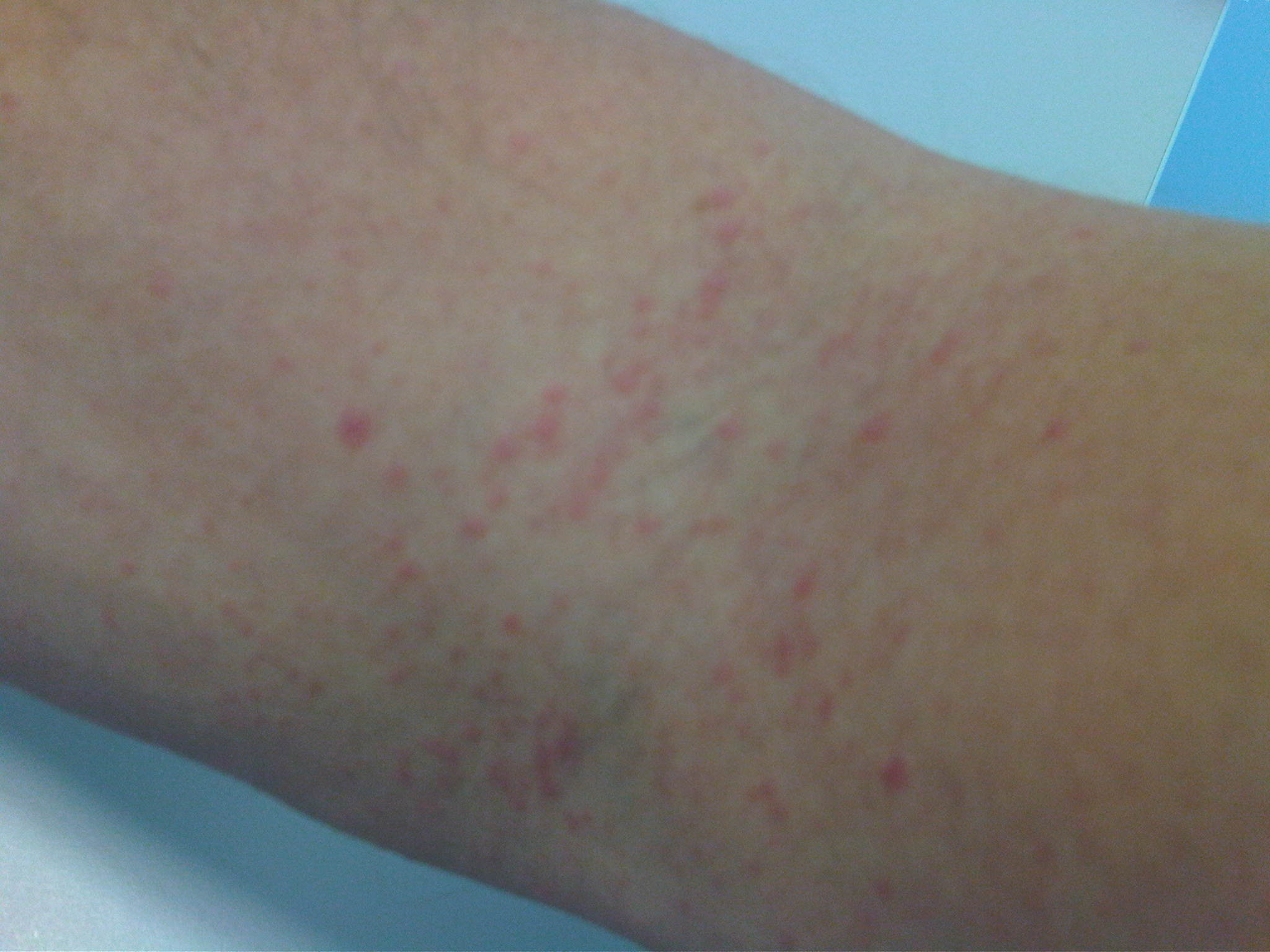 itchy rash on arms dog breeds picture