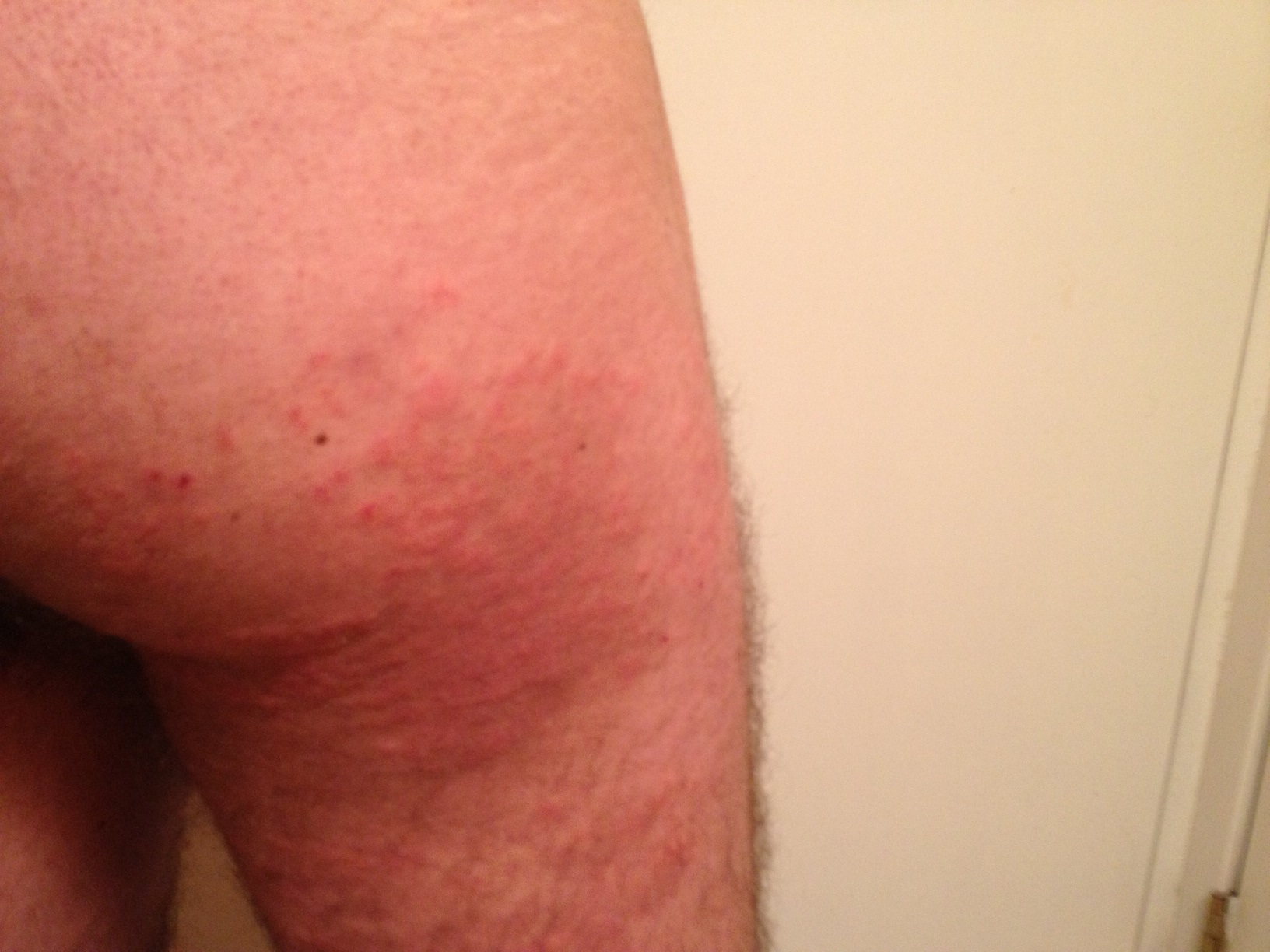 Rashes on the butt