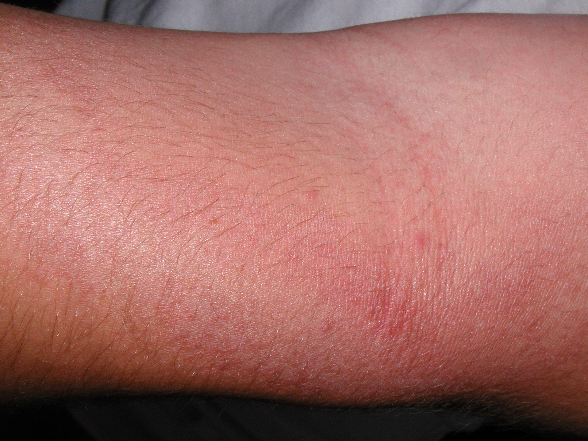 Red bumpy rash on crease of arm | Sarah blog