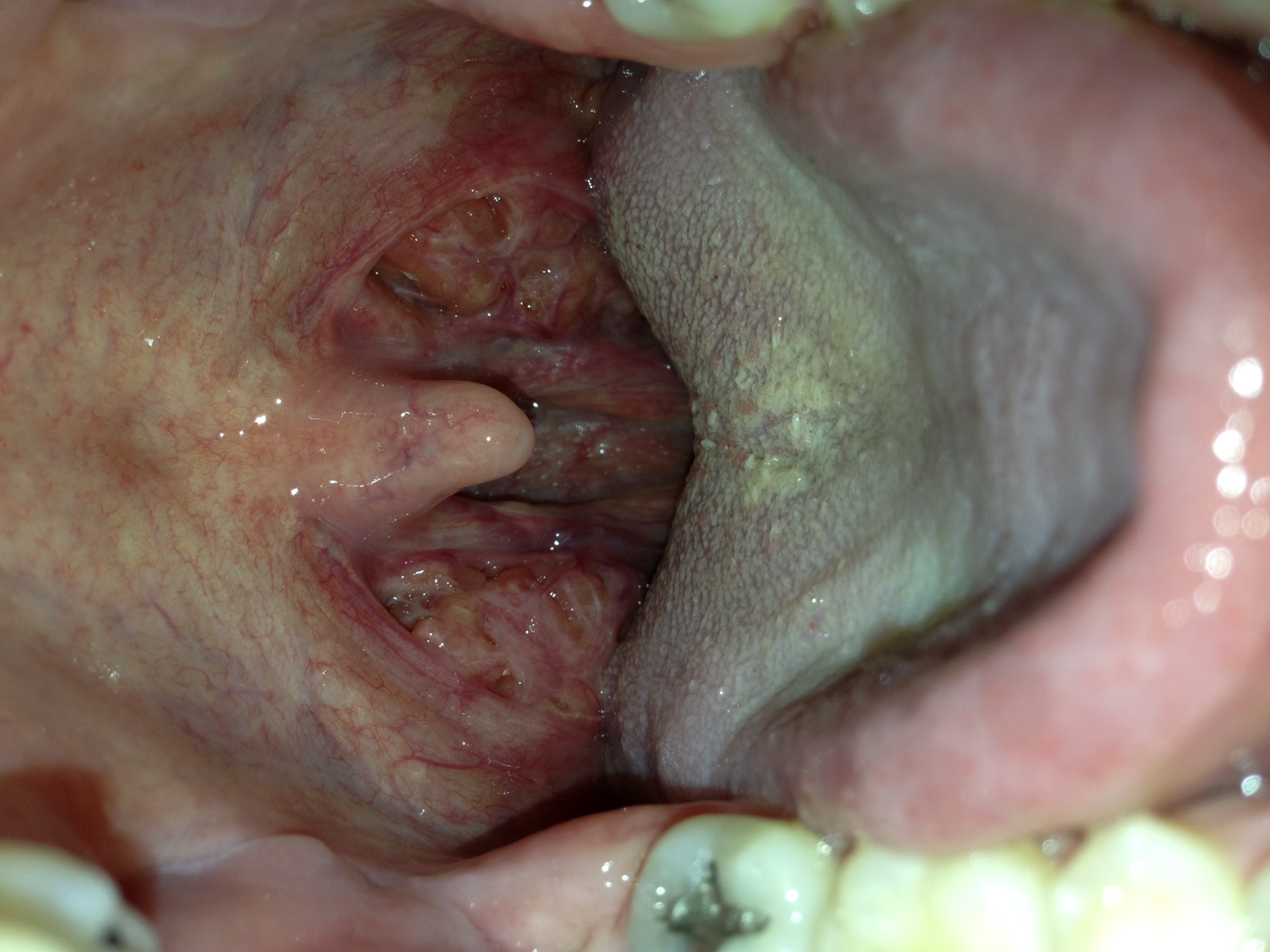 Go Back  gt  Images For  gt  Canker Sore On TonsilCanker Sore On Tonsil Causes