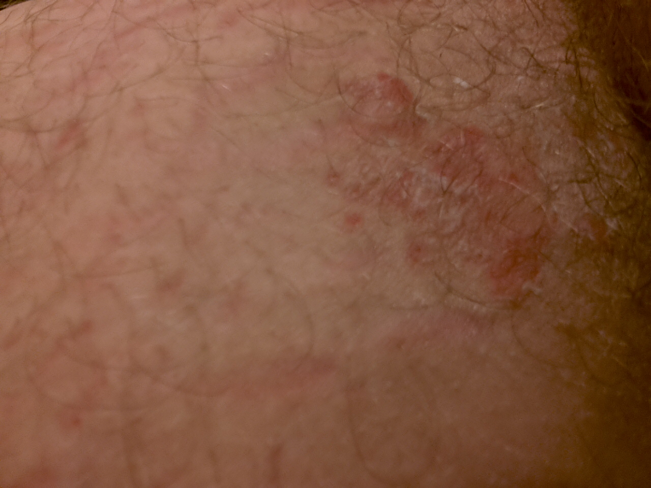Slideshow: Below the Belt: Rashes, Bumps , and Lumps