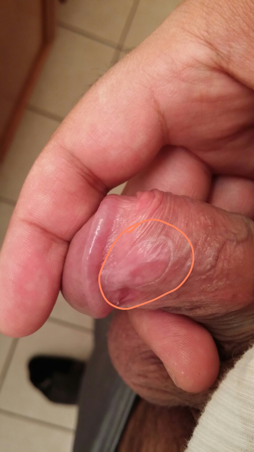 White Ring On Penis 3