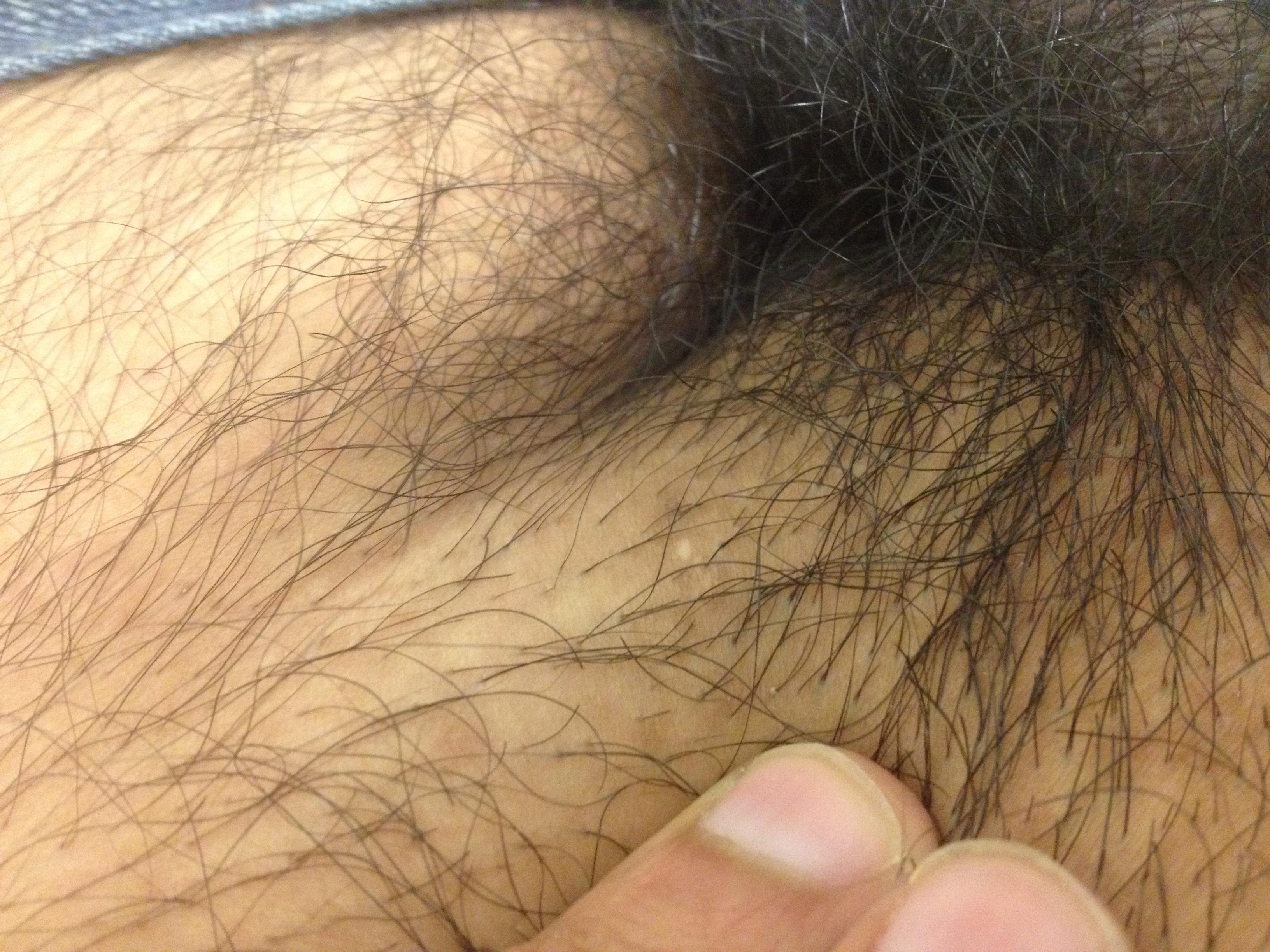 videos pubic hair .