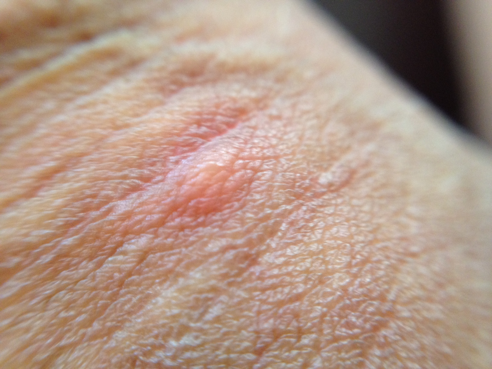 ... Shaft white bumps on skin, little, dry, hard itchy white spots