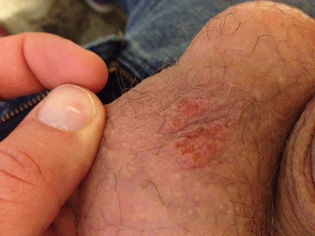 Genital Herpes Pictures - Herpes Pictures
