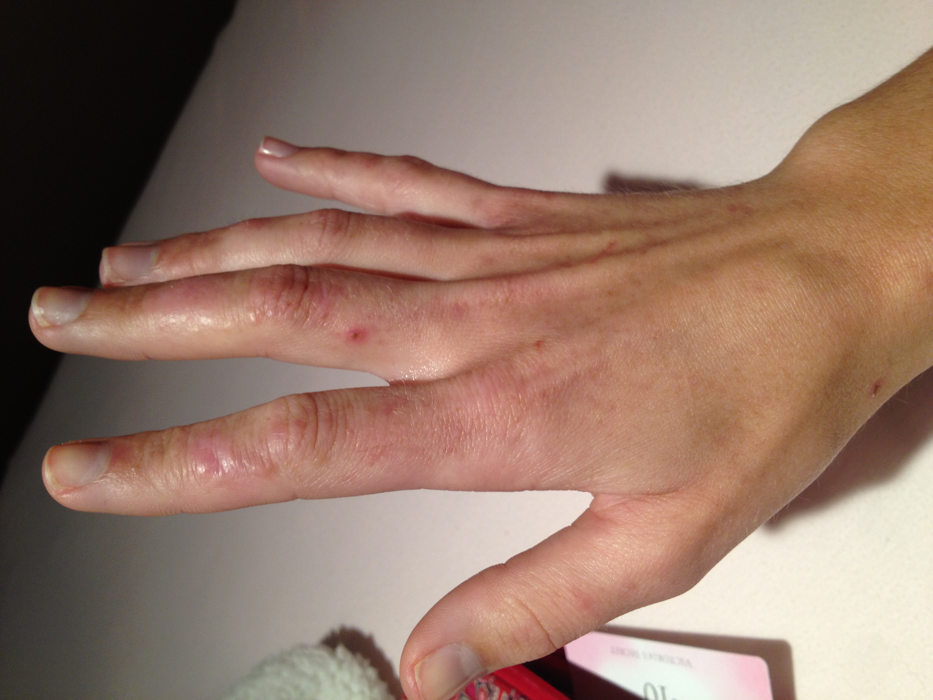 I have had a rash on the back of my hand (mostly my right ...