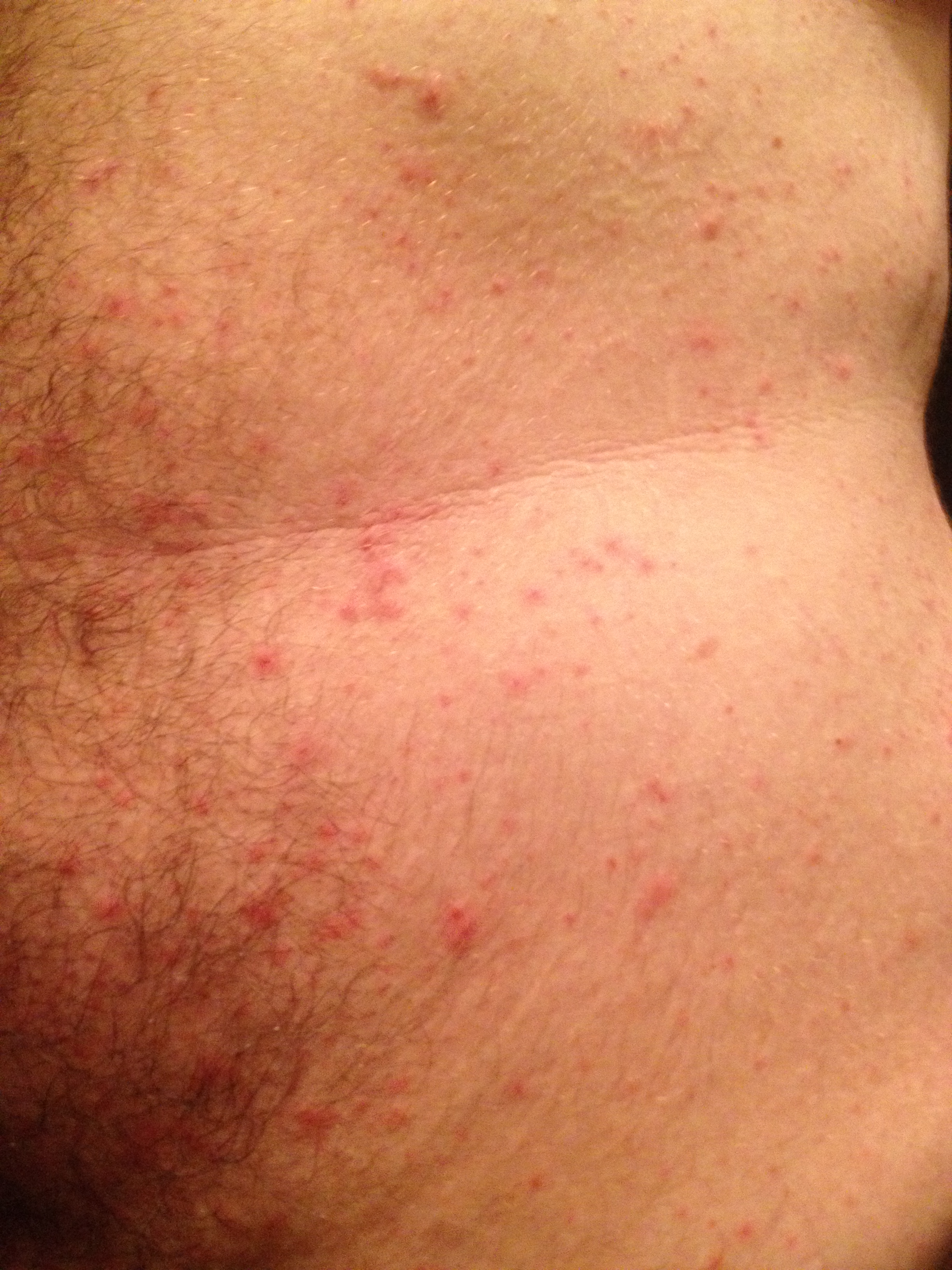 red bumps on arms stomach - MedHelp