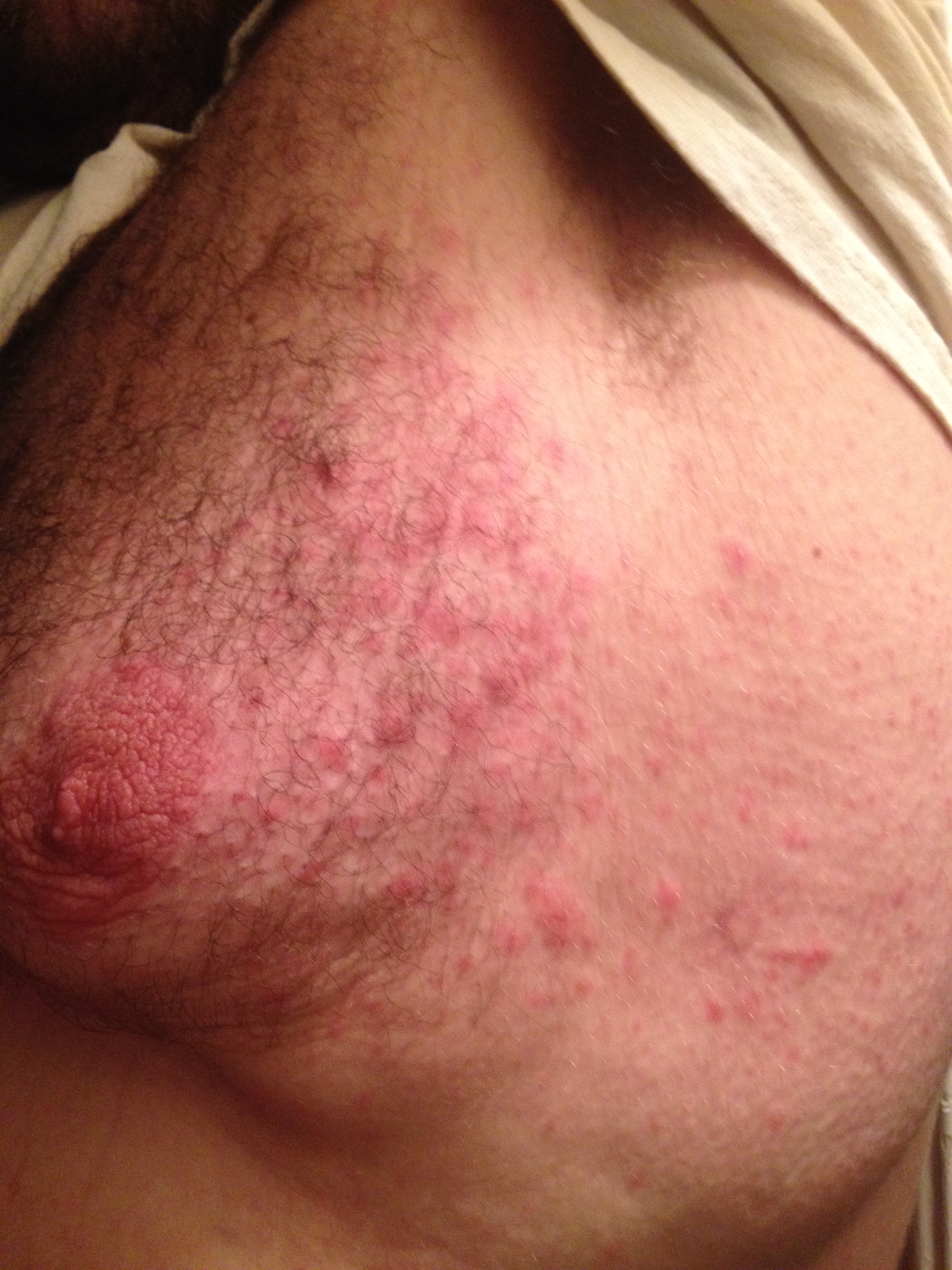 I Have Red Bumps on My Stomach - JustAnswer