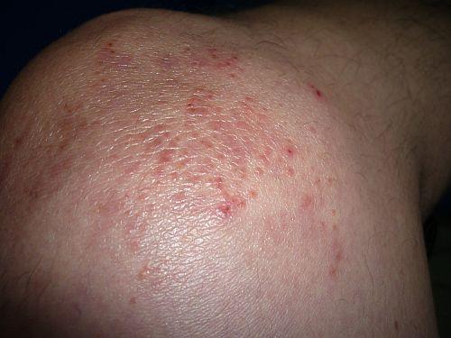 Hospital Bed Rashes