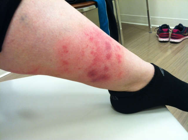 hives on legs memes