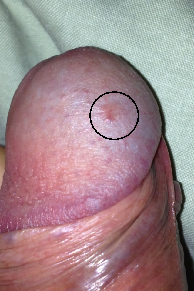 Pink patch on penis