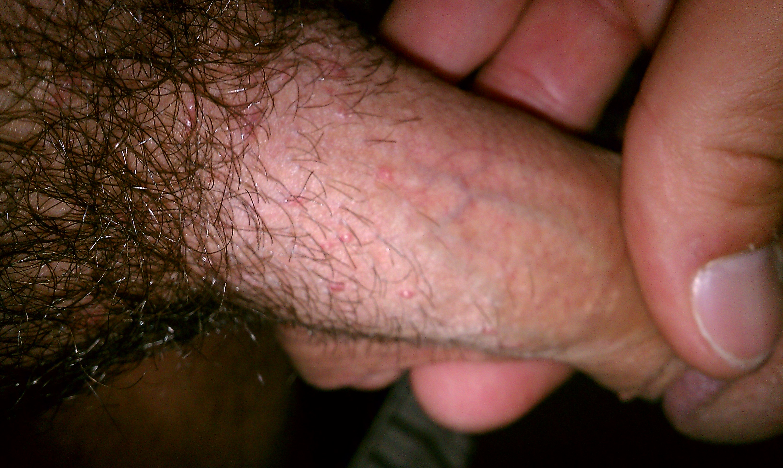 What are pimples around the penis