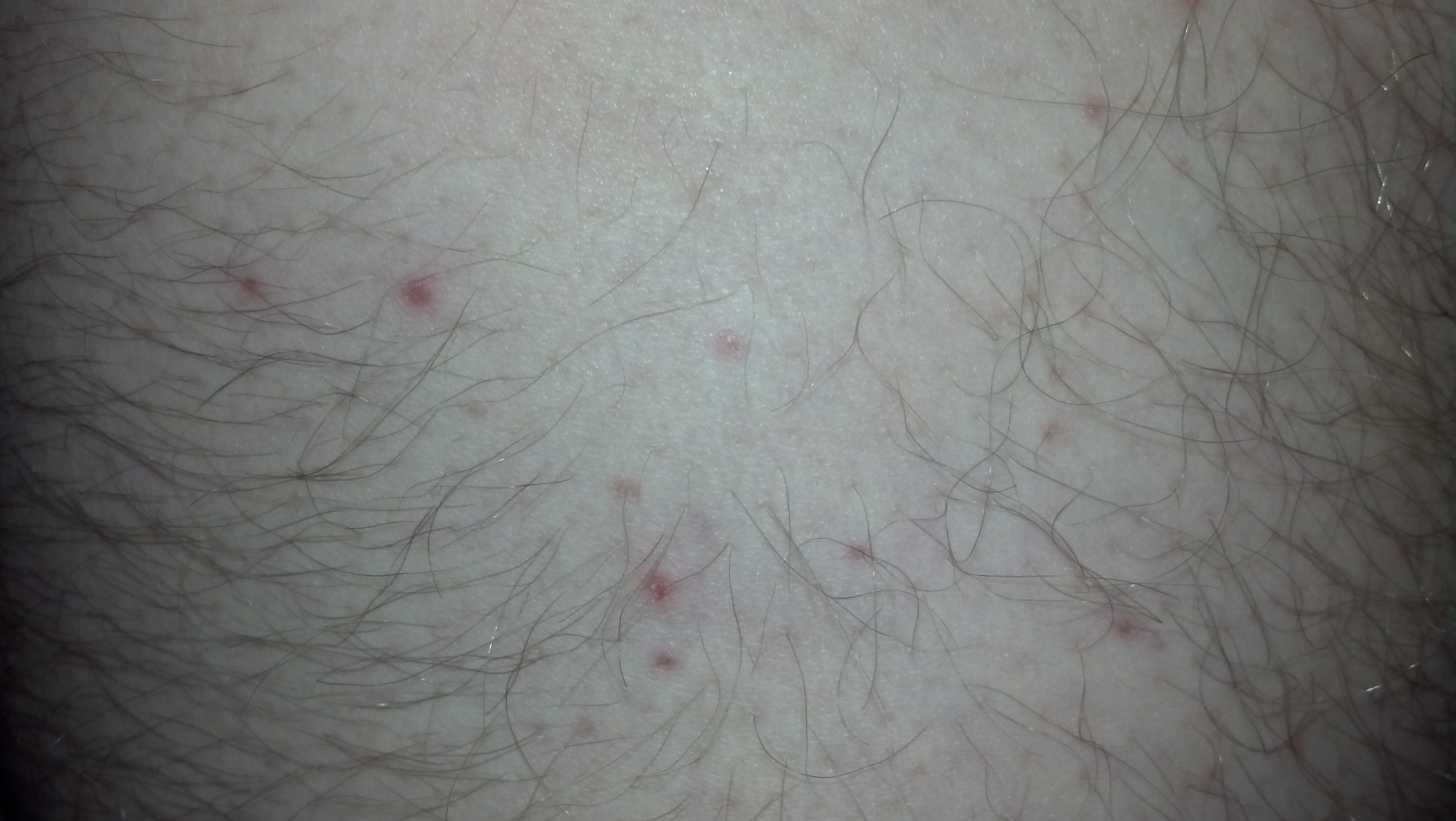 bumps on upper front of right thigh